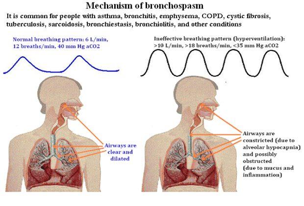 Bronchospasm Causes, Symptoms and Treatments