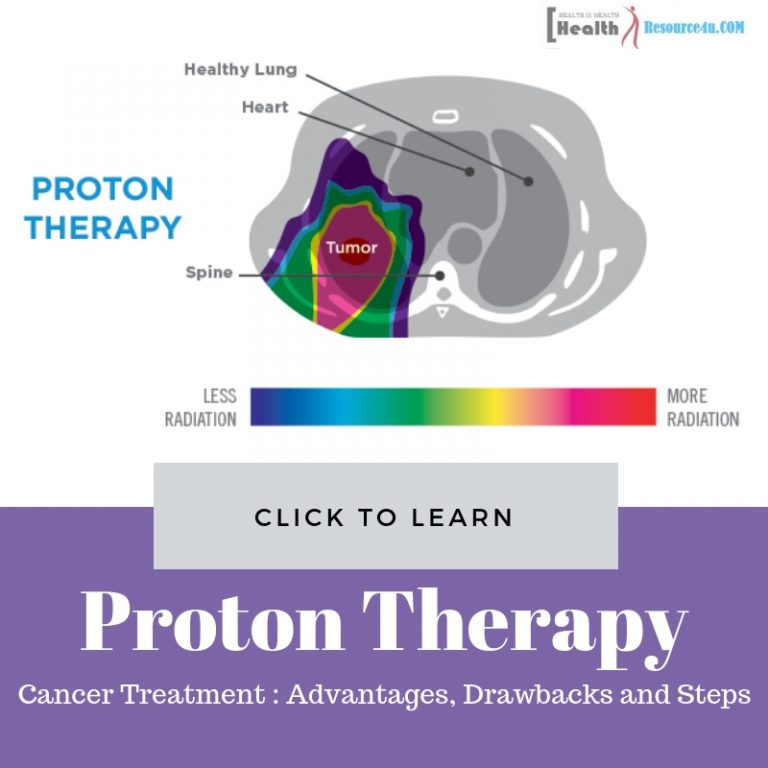Proton Therapy for Cancer Treatment