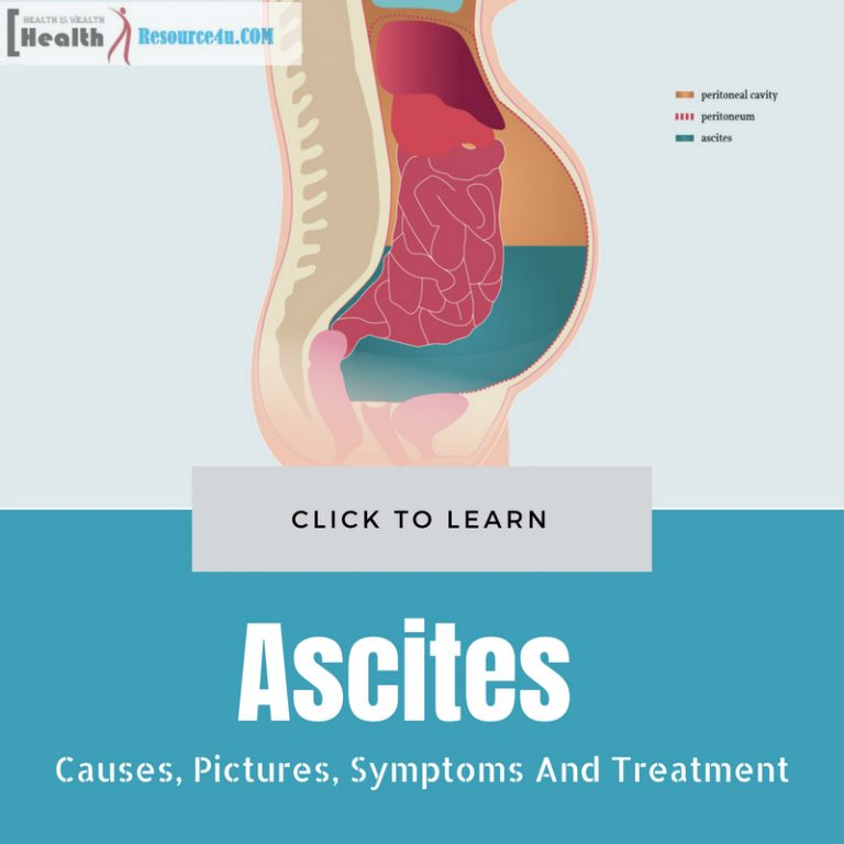 Ascites Causes and Treatment