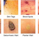 Different Types of Warts