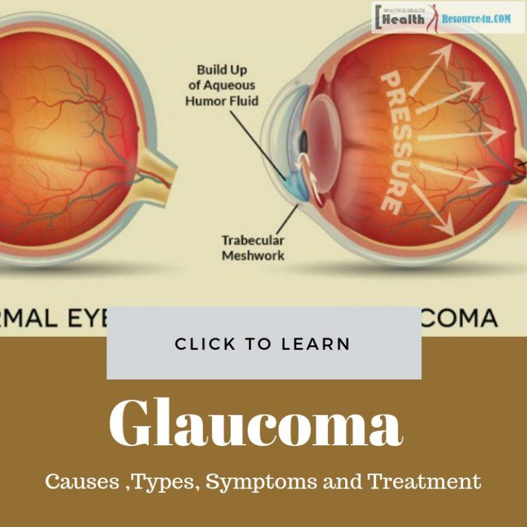 Glaucoma Causes treatment