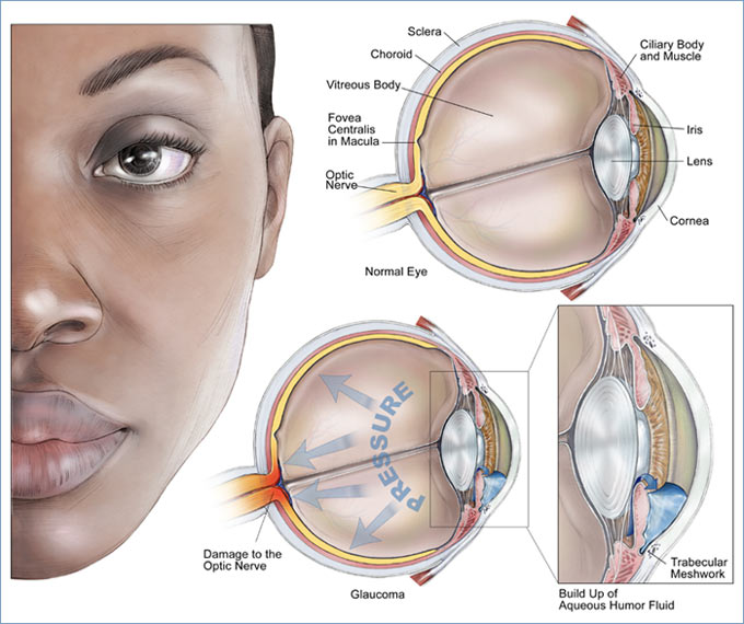 Glaucoma pictures