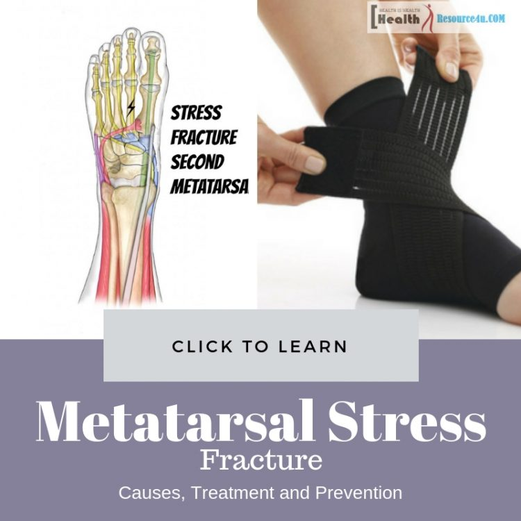 Metatarsal Stress Fracture