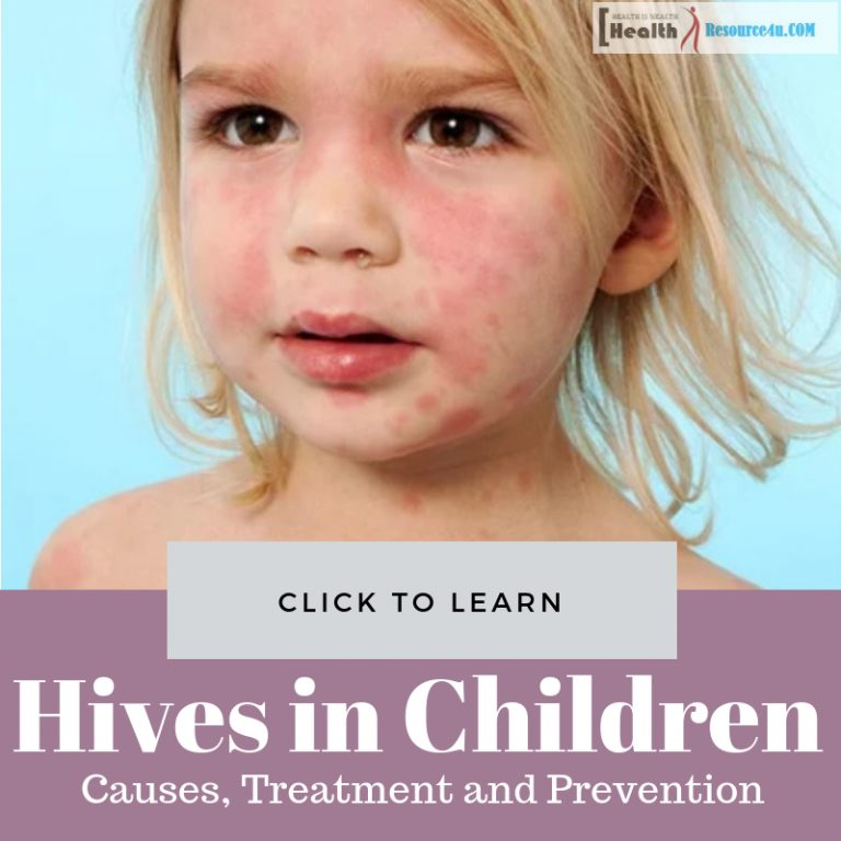 Hives in Children