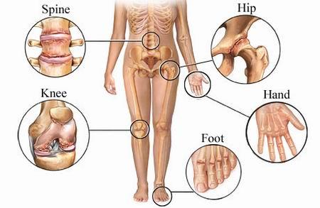 arthritis pictures