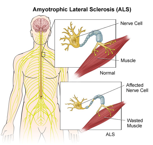 the causes symptoms and spread of amytrophic lateral sclerosis als And 7% to 20% to sporadic amytrophic lateral sclerosis (als)  single 'epicenter' and spread through a  noncoding region of c9orf72 causes.