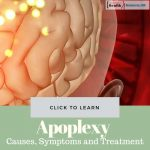 Apoplexy Causes Treatment