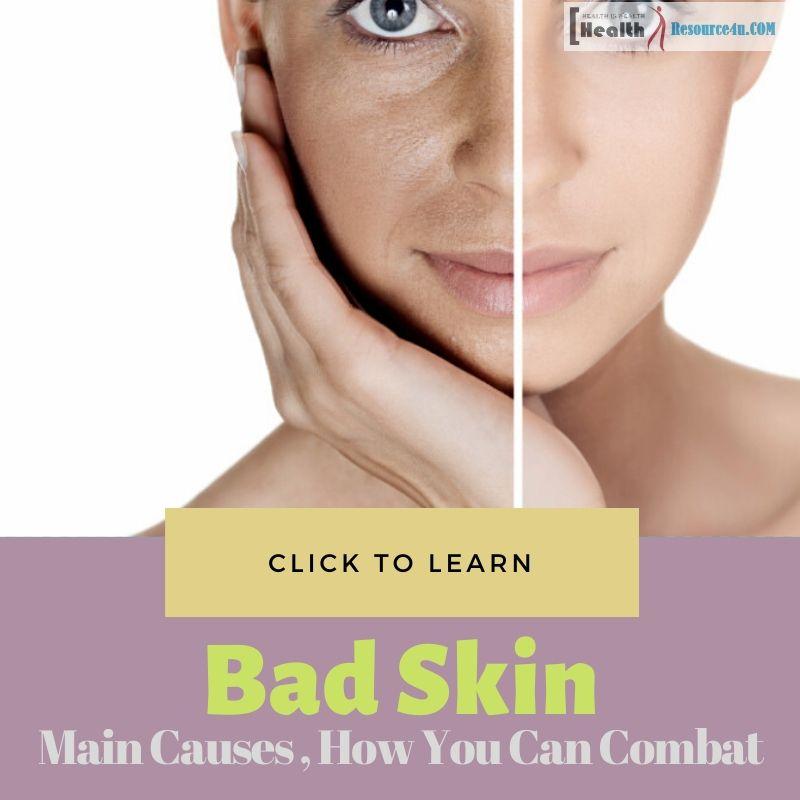 Bad Skin Causes