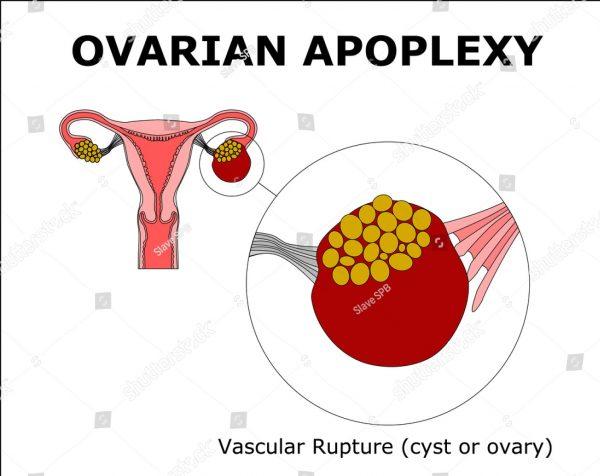 Ovarian Apoplexy