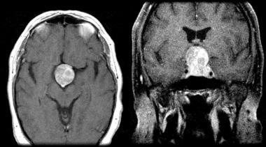 Pituitary Apoplexy