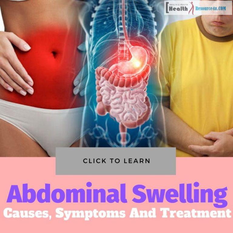 Abdominal Swelling