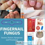 Fingernail Fungus Causes and Treatment