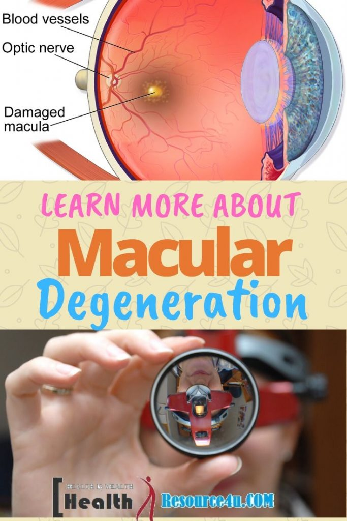 Macular Degeneration Causes Treatment