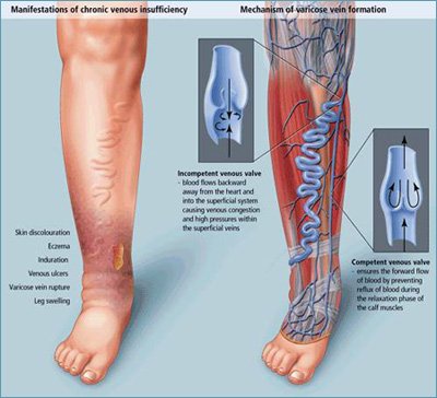varicose veins pictures