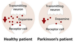 Dopamine levels in Parkinson's disease