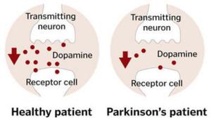 Dopamine levels in Parkinson's disease