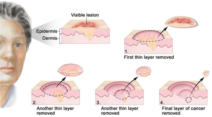 mohs surgery step by step