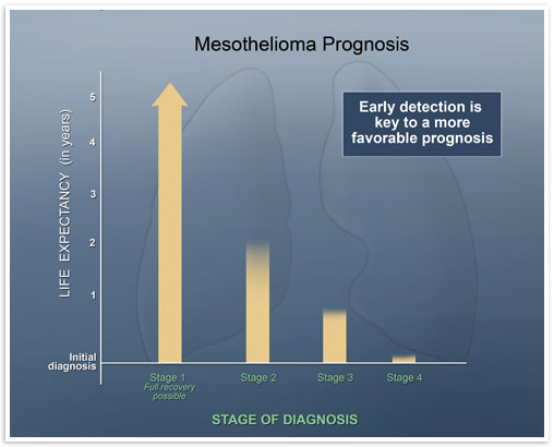 mesothelioma prognosis stages