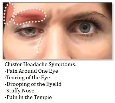 Cluster Headache sysmptoms