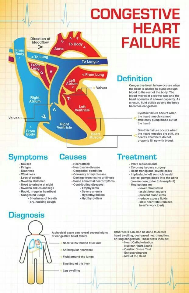 Congestive Heart Failure infographic
