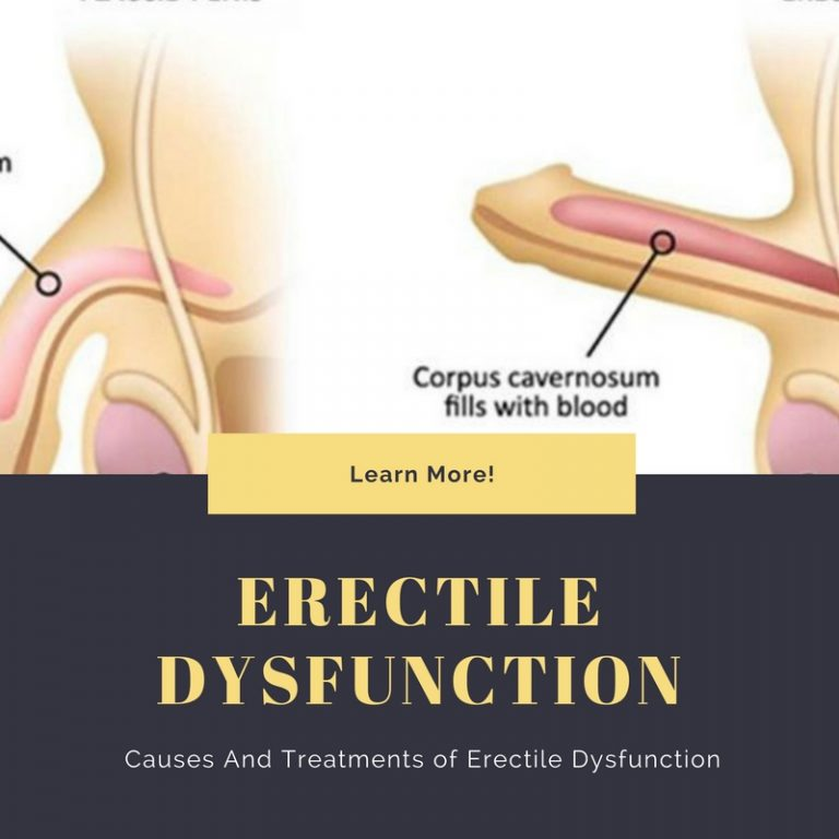 Causes And Treatments of Erectile Dysfunction