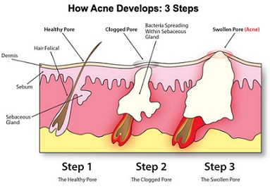 How acne develops