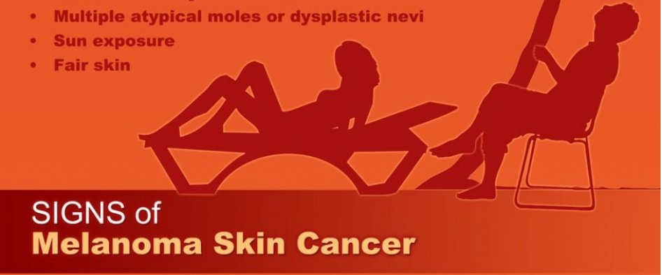 Melanoma Skin Cancer Symptoms