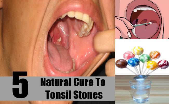 Natural Cure To Tonsil Stones