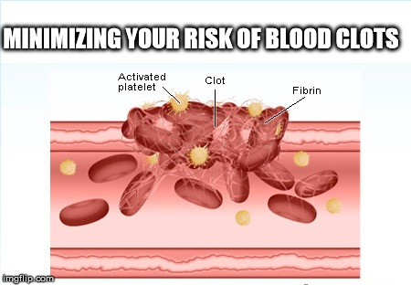 Minimizing Your Risk of Blood Clots