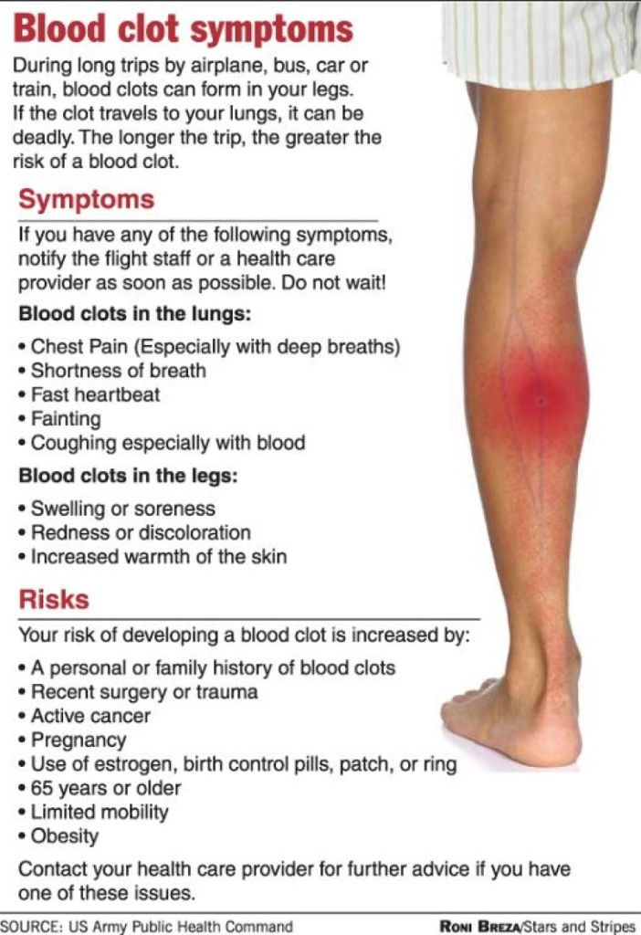 blood clot symptoms