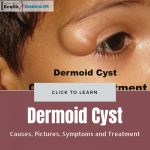 Dermoid Cyst Picture