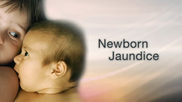 Neonatal Jaundice in Newborn - Symptoms and Treatment