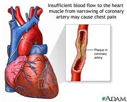 Blockage in the Arteries to the Heart