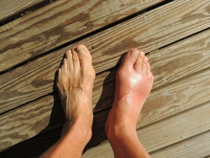 cause of gout