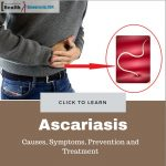 Ascariasis Causes, Symptoms