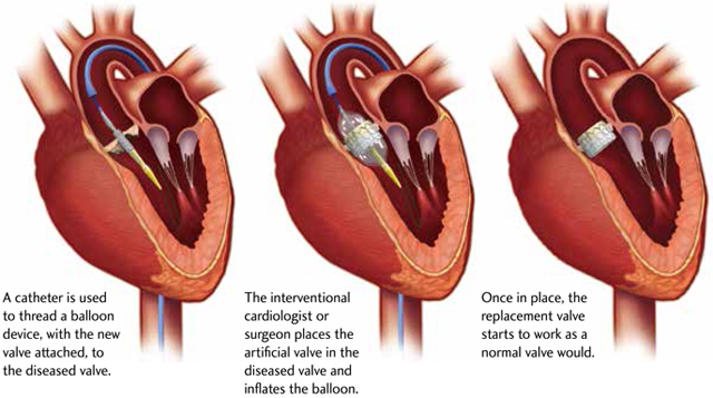 heart valve replacement surgery procedure