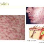Folliculitis disease causes treatment