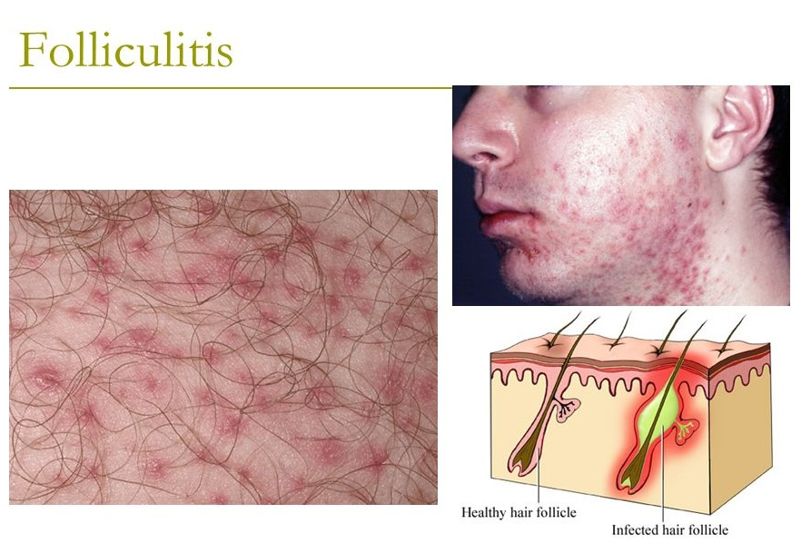 Folliculitis disease causes treatment