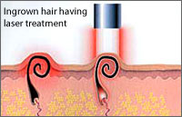 Laser Treatment for Folliculitis