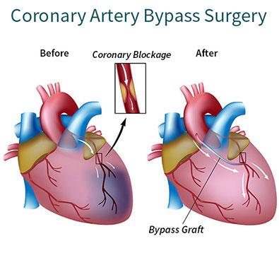 Coronary-Artery-Bypass-Graft-Surgery