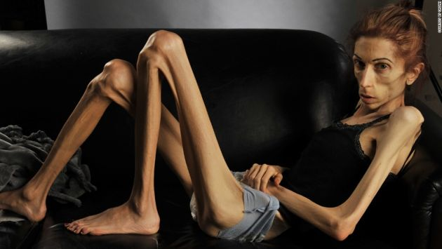 Anorexia Nervosa (Eating Disorder)