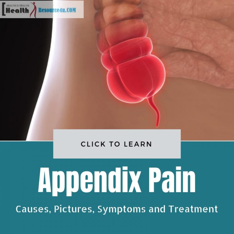 Appendix Pain Causes Pictures Symptoms And Treatment