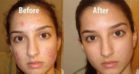baking-soda-for-face-before-and-after
