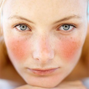 face-dry-and-red