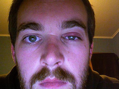 Swollen Top Eyelids