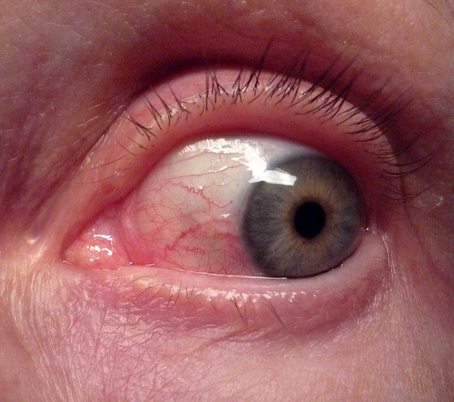 Allergic Conjunctivitis Vs Bacterial Pictures To Pin On: Swollen Eyelids: Causes, Pictures, Symptoms And Treatment