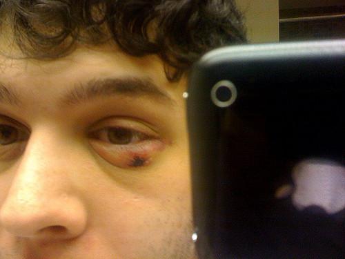 Swollen lower Eyelids