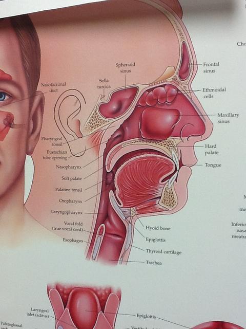 sinus-headaches