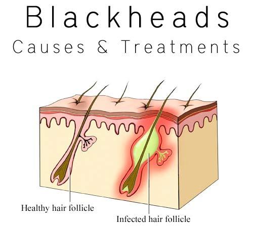 blackheads1