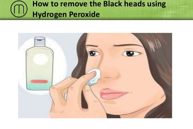 how-to-remove-blackheads-using-hydrogen-peroxide-1-638